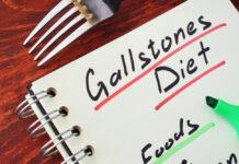 treat gallstones